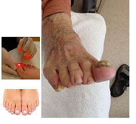 Laser Therapy on Toe Nails