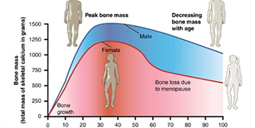 Osteo Disease